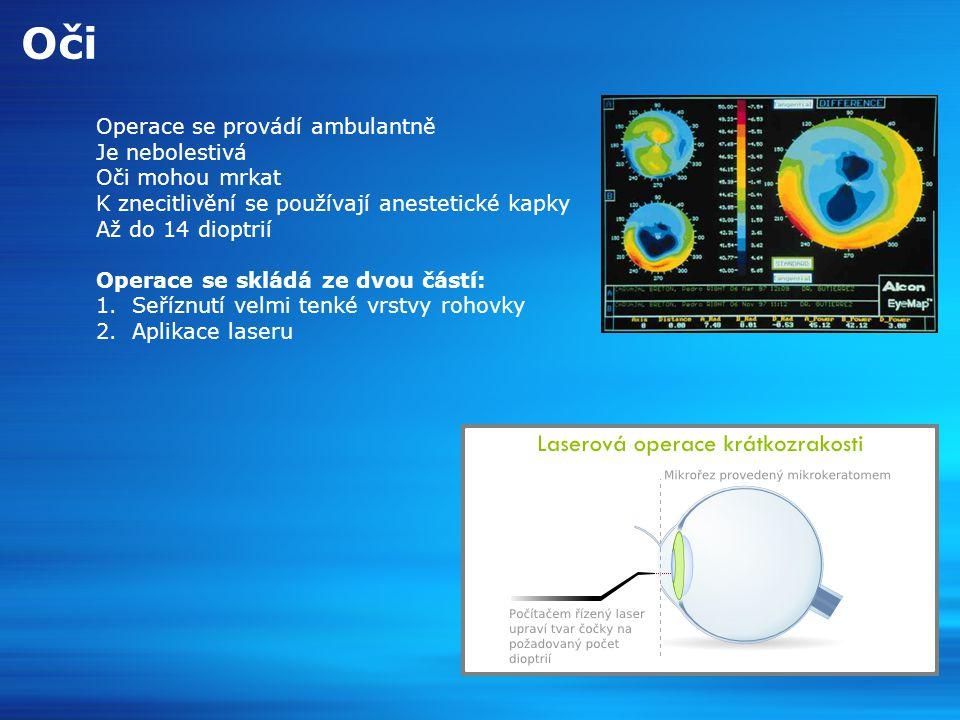 Oči Operace se provádí ambulantně Je nebolestivá Oči mohou mrkat K znecitlivění se používají anestetické kapky Až do 14 dioptrií Operace se skládá ze dvou částí: 1.Seříznutí velmi tenké vrstvy rohovky 2.Aplikace laseru