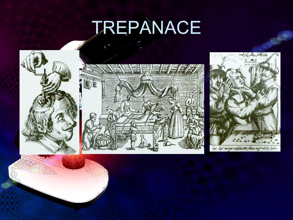 TREPANACE