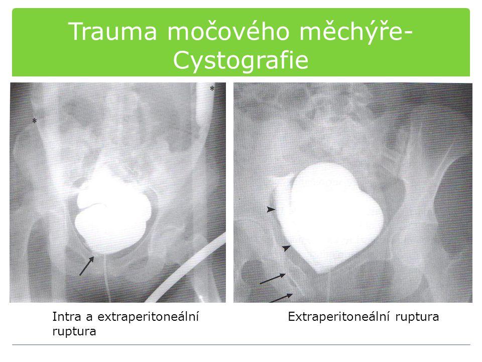 Trauma močového měchýře- Cystografie Intra a extraperitoneální ruptura Extraperitoneální ruptura