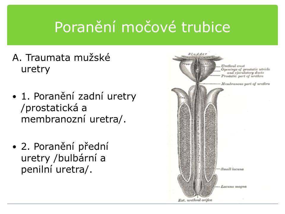 Poranění močové trubice A. Traumata mužské uretry 1. Poranění zadní uretry /prostatická a membranozní uretra/. 2. Poranění přední uretry /bulbární a p