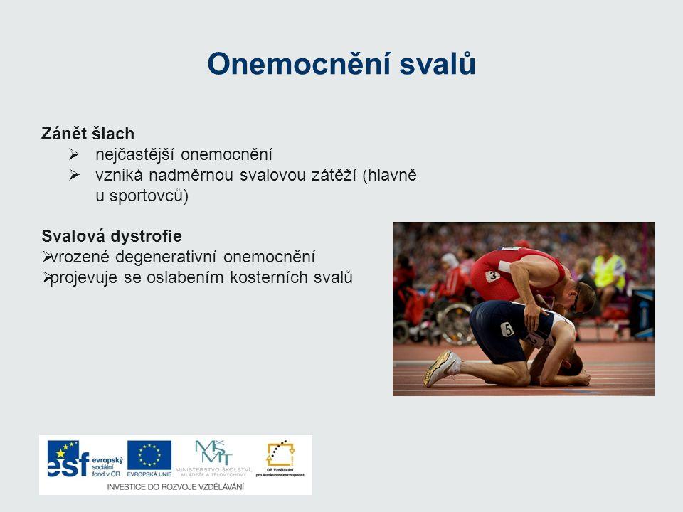 Onemocnění svalů Zánět šlach  nejčastější onemocnění  vzniká nadměrnou svalovou zátěží (hlavně u sportovců) Svalová dystrofie  vrozené degenerativn