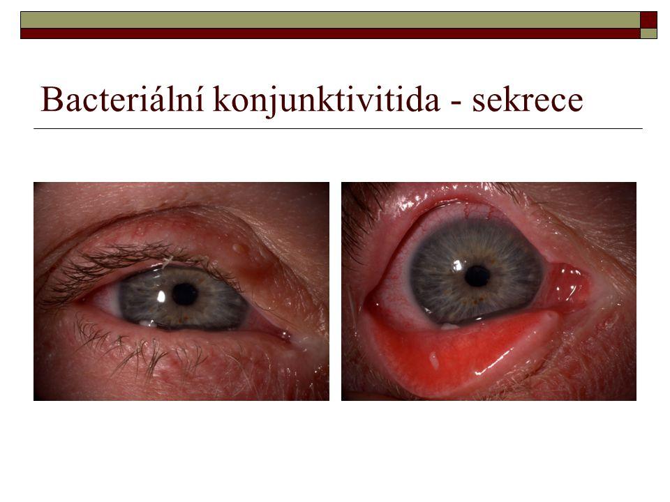 Bacteriální konjunktivitida - sekrece