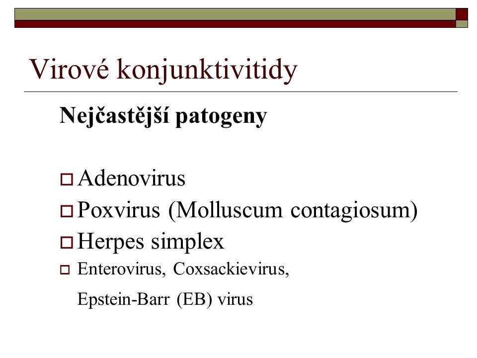 Virové konjunktivitidy Nejčastější patogeny  Adenovirus  Poxvirus (Molluscum contagiosum)  Herpes simplex  Enterovirus, Coxsackievirus, Epstein-Ba