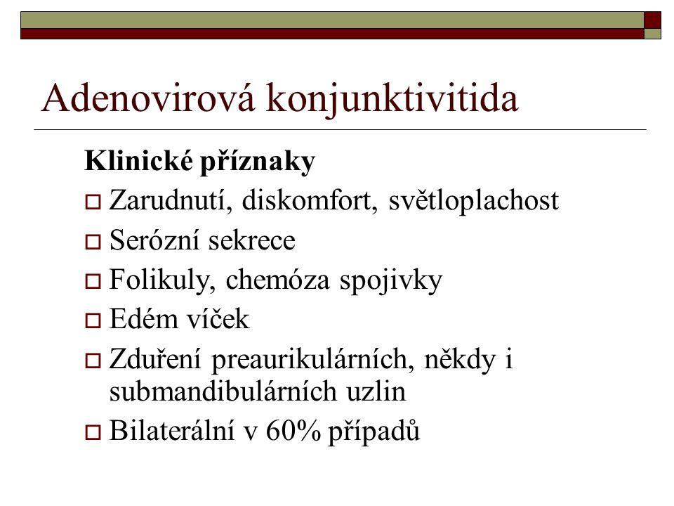 Adenovirová konjunktivitida Klinické příznaky  Zarudnutí, diskomfort, světloplachost  Serózní sekrece  Folikuly, chemóza spojivky  Edém víček  Zd