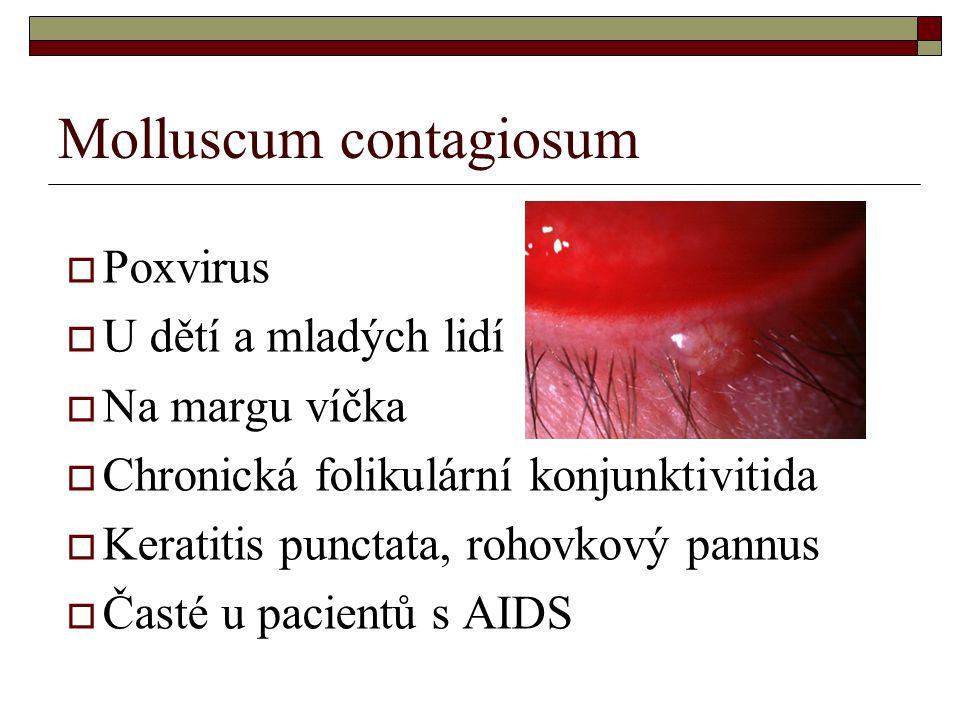 Molluscum contagiosum  Poxvirus  U dětí a mladých lidí  Na margu víčka  Chronická folikulární konjunktivitida  Keratitis punctata, rohovkový pann