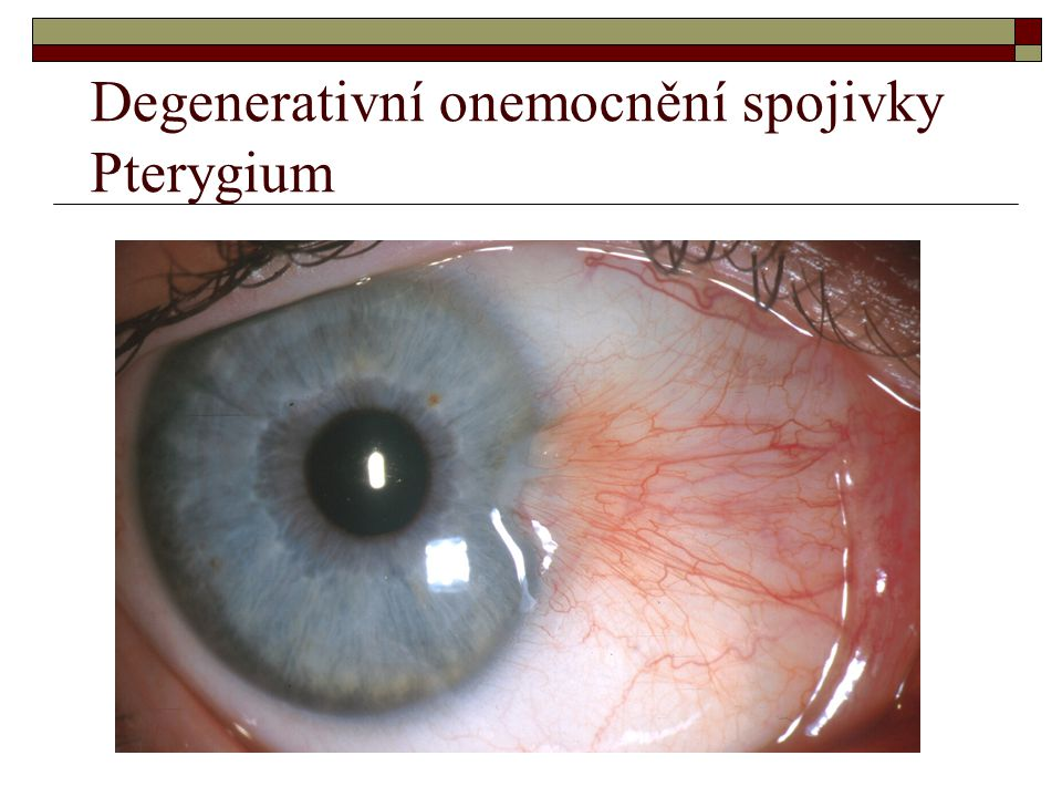 Degenerativní onemocnění spojivky Pterygium