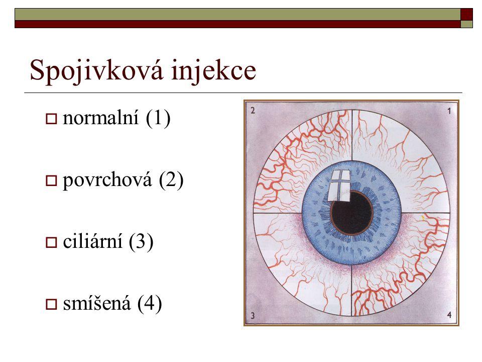 Spojivková injekce  normalní (1)  povrchová (2)  ciliární (3)  smíšená (4)