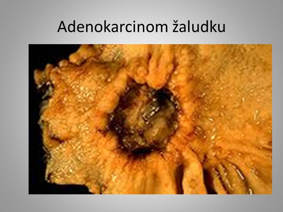 Adenokarcinom žaludku