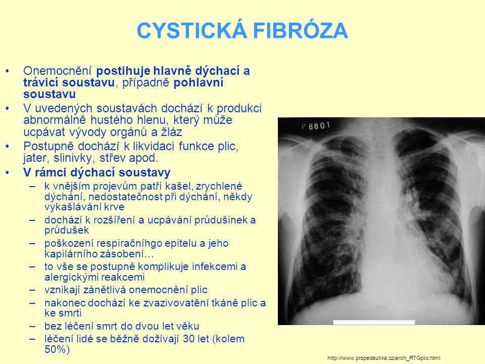 CYSTICKÁ FIBRÓZA Onemocnění postihuje hlavně dýchací a trávicí soustavu, případně pohlavní soustavu V uvedených soustavách dochází k produkci abnormál
