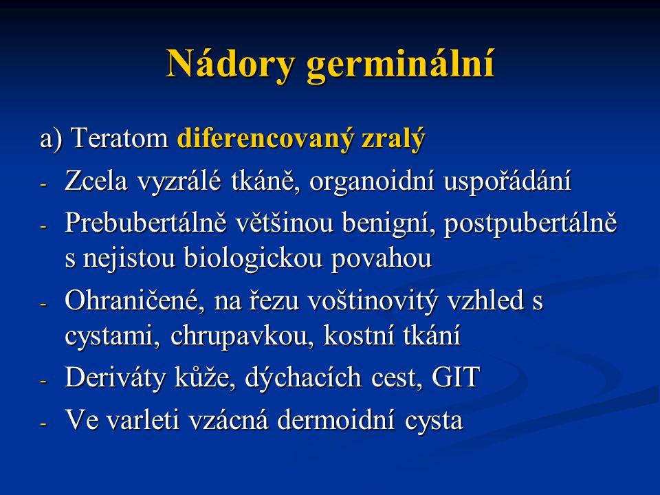 a) Teratom diferencovaný zralý - Zcela vyzrálé tkáně, organoidní uspořádání - Prebubertálně většinou benigní, postpubertálně s nejistou biologickou po