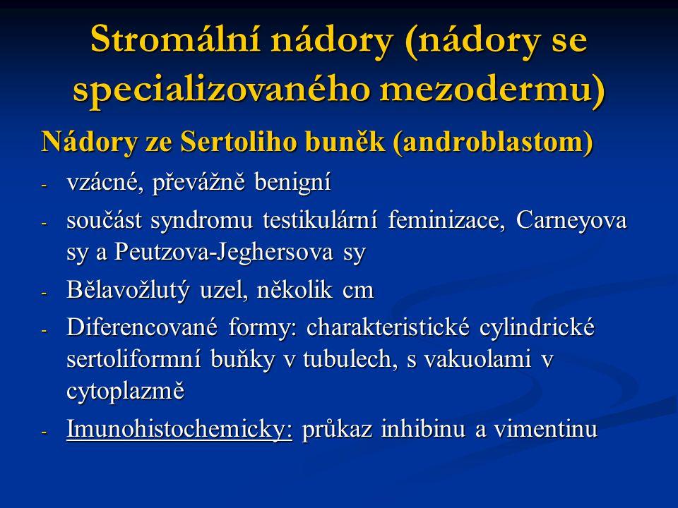 Nádory ze Sertoliho buněk (androblastom) - vzácné, převážně benigní - součást syndromu testikulární feminizace, Carneyova sy a Peutzova-Jeghersova sy
