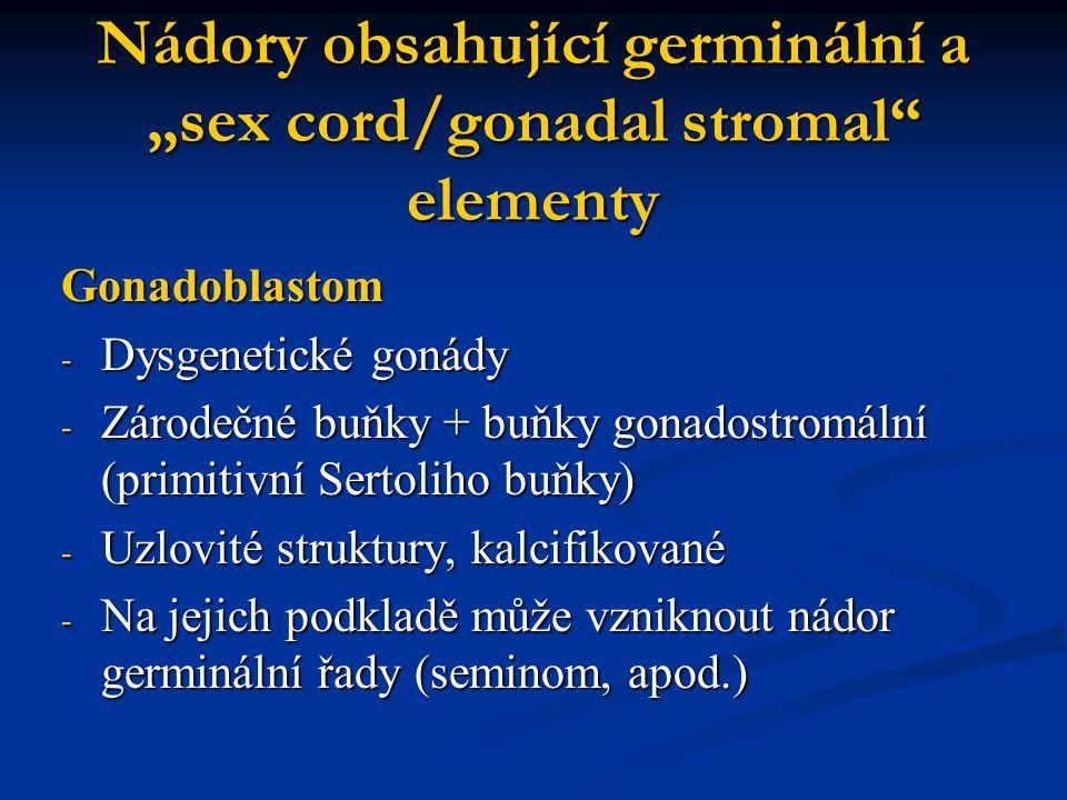 """Nádory obsahující germinální a """"sex cord/gonadal stromal"""" elementy Gonadoblastom - Dysgenetické gonády - Zárodečné buňky + buňky gonadostromální (prim"""