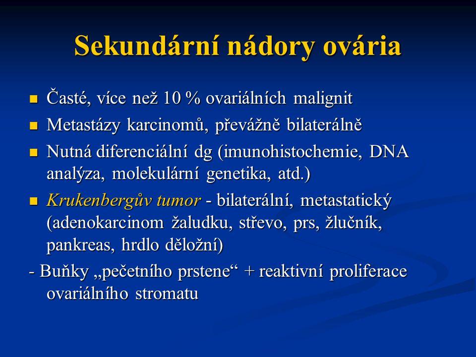 Sekundární nádory ovária Časté, více než 10 % ovariálních malignit Časté, více než 10 % ovariálních malignit Metastázy karcinomů, převážně bilaterálně