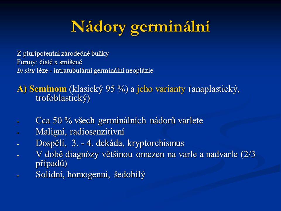 Nádory germinální Z pluripotentní zárodečné buňky Formy: čisté x smíšené In situ léze - intratubulární germinální neoplázie A) Seminom (klasický 95 %)