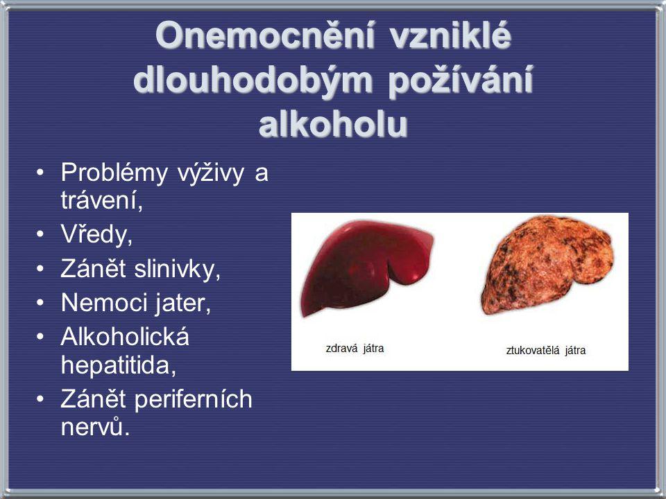 Onemocnění vzniklé dlouhodobým požívání alkoholu Problémy výživy a trávení, Vředy, Zánět slinivky, Nemoci jater, Alkoholická hepatitida, Zánět perifer