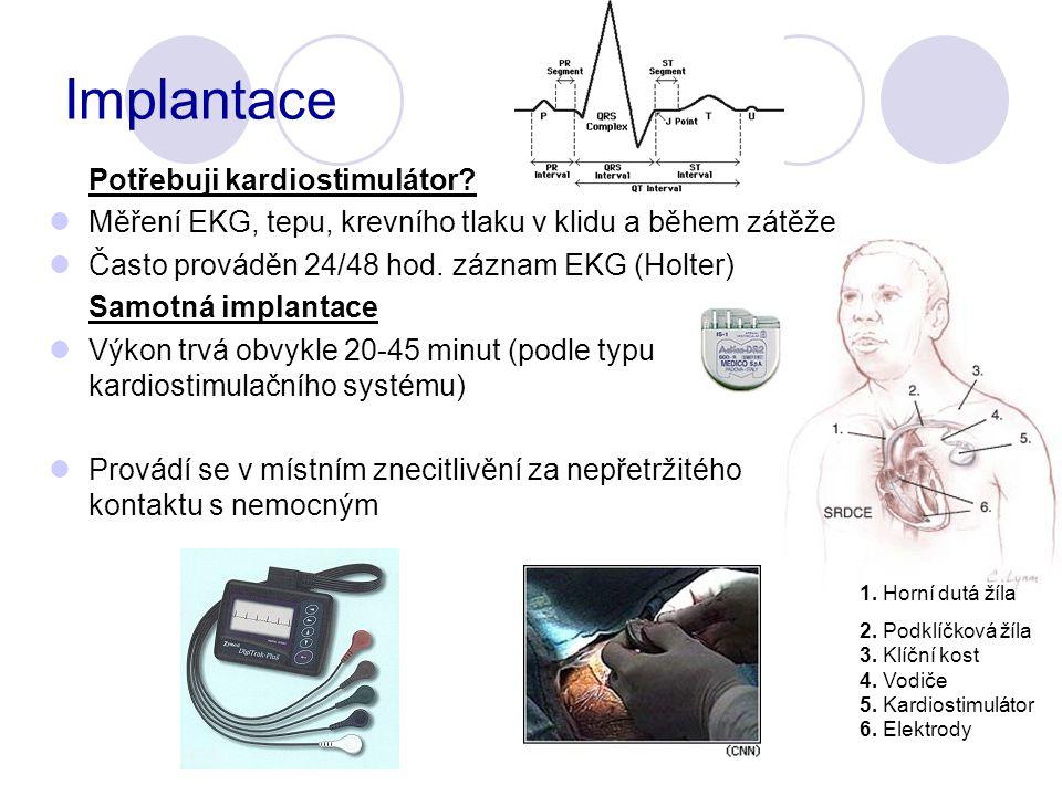 Implantace Potřebuji kardiostimulátor.