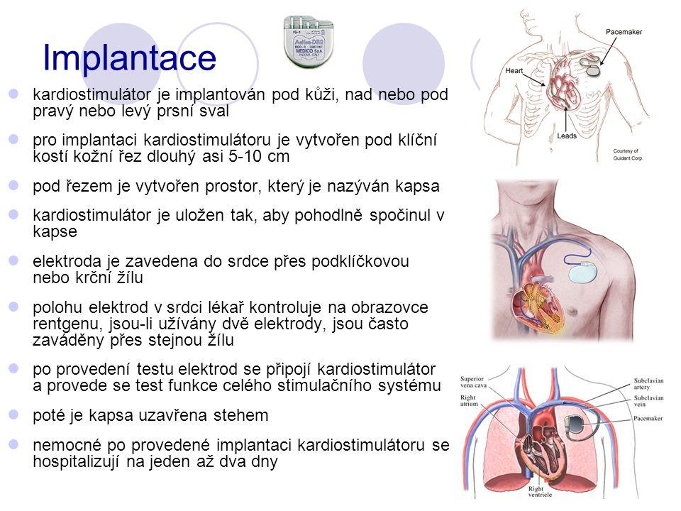 Implantace kardiostimulátor je implantován pod kůži, nad nebo pod pravý nebo levý prsní sval pro implantaci kardiostimulátoru je vytvořen pod klíční kostí kožní řez dlouhý asi 5-10 cm pod řezem je vytvořen prostor, který je nazýván kapsa kardiostimulátor je uložen tak, aby pohodlně spočinul v kapse elektroda je zavedena do srdce přes podklíčkovou nebo krční žílu polohu elektrod v srdci lékař kontroluje na obrazovce rentgenu, jsou-li užívány dvě elektrody, jsou často zaváděny přes stejnou žílu po provedení testu elektrod se připojí kardiostimulátor a provede se test funkce celého stimulačního systému poté je kapsa uzavřena stehem nemocné po provedené implantaci kardiostimulátoru se hospitalizují na jeden až dva dny