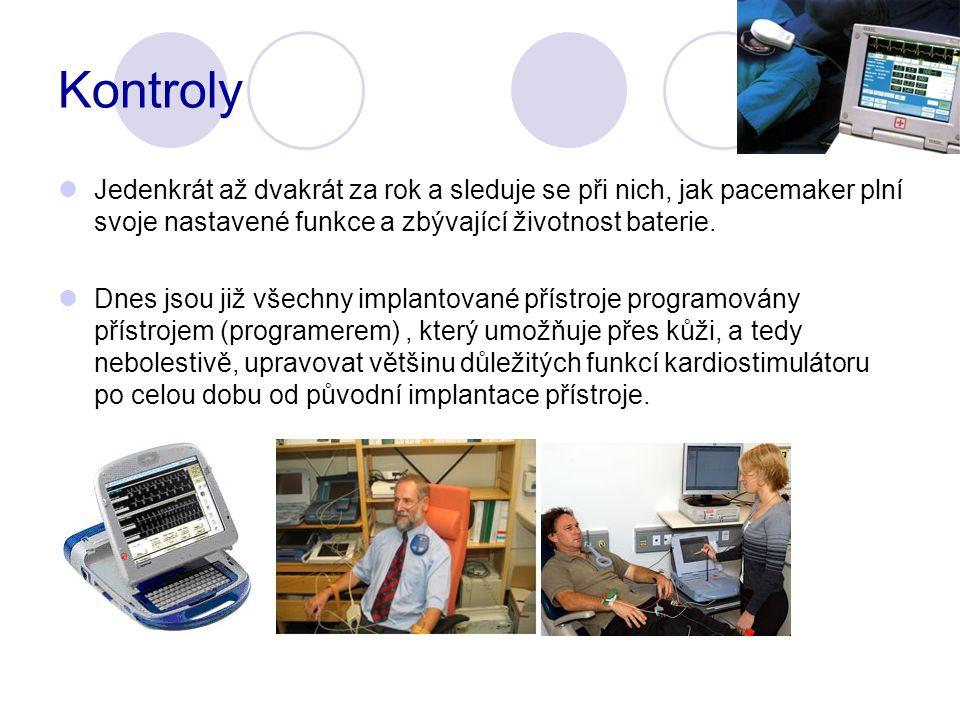 Kontroly Jedenkrát až dvakrát za rok a sleduje se při nich, jak pacemaker plní svoje nastavené funkce a zbývající životnost baterie.