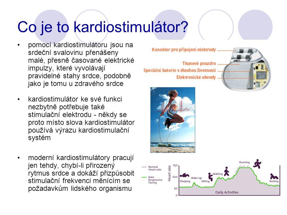 Co je to kardiostimulátor.