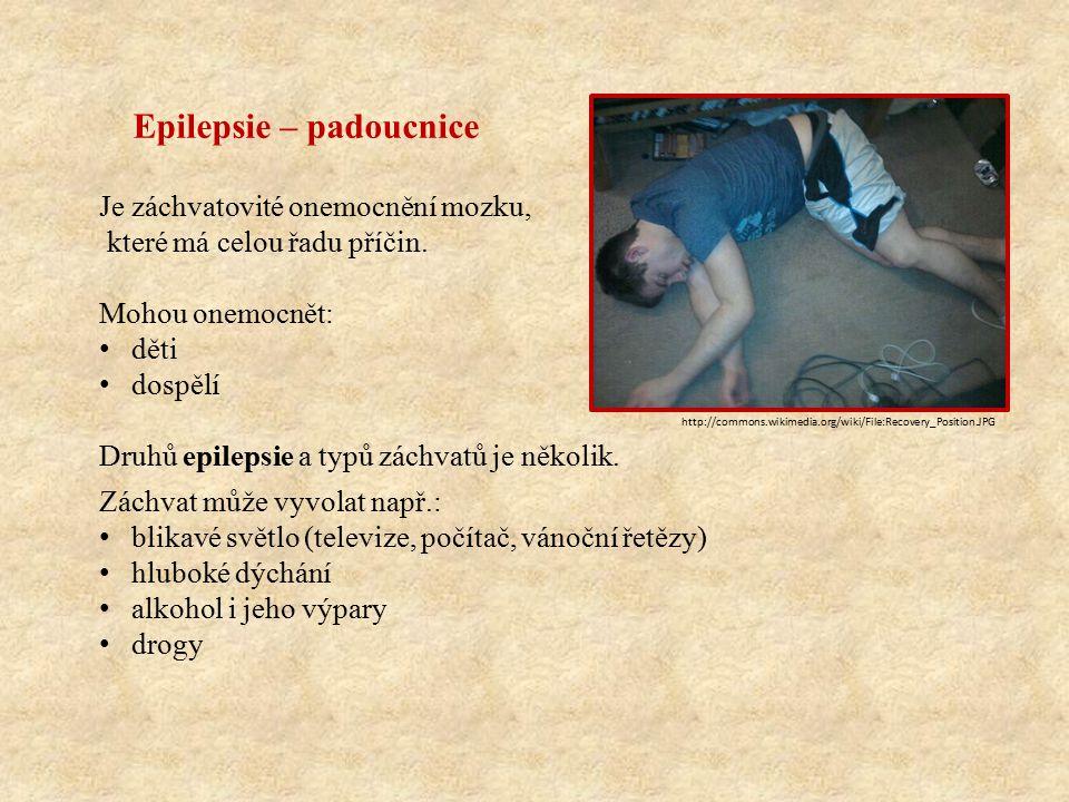 Epilepsie – padoucnice Je záchvatovité onemocnění mozku, které má celou řadu příčin.