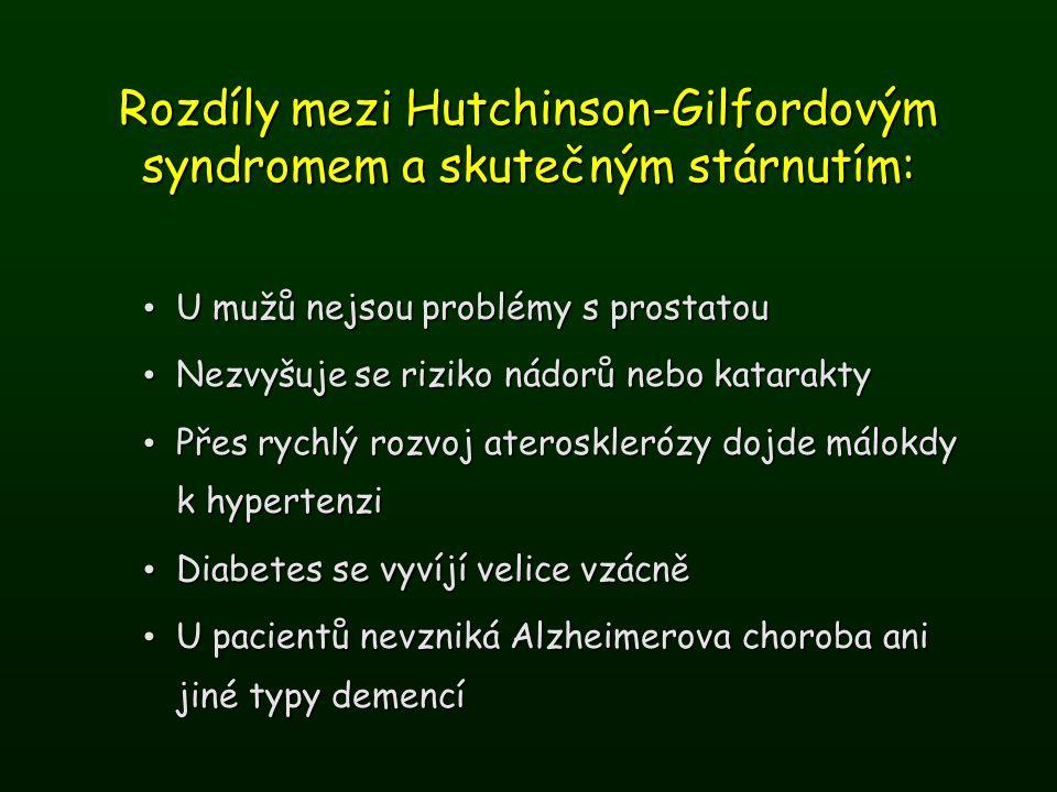 Rozdíly mezi Hutchinson-Gilfordovým syndromem a skutečným stárnutím: U mužů nejsou problémy s prostatou U mužů nejsou problémy s prostatou Nezvyšuje s