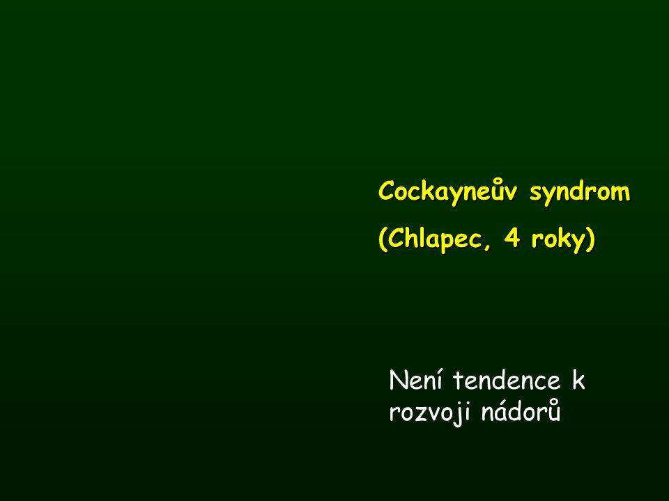 Cockayneův syndrom (Chlapec, 4 roky) Není tendence k rozvoji nádorů