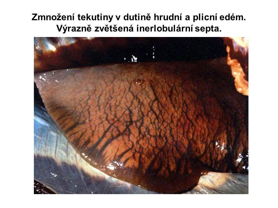 Zmnožení tekutiny v dutině hrudní a plicní edém. Výrazně zvětšená inerlobulární septa.