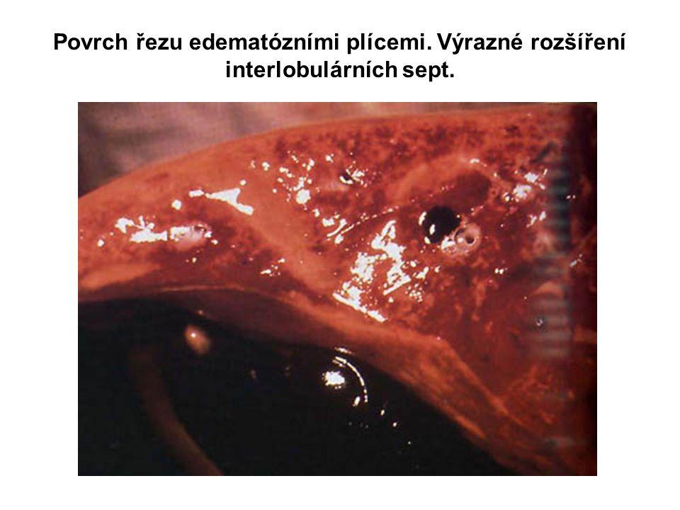 Povrch řezu edematózními plícemi. Výrazné rozšíření interlobulárních sept.
