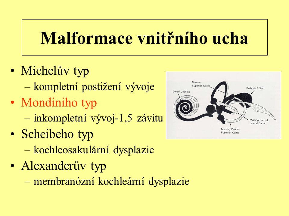 Malformace vnitřního ucha Michelův typ –kompletní postižení vývoje Mondiniho typ –inkompletní vývoj-1,5 závitu Scheibeho typ –kochleosakulární dysplazie Alexanderův typ –membranózní kochleární dysplazie