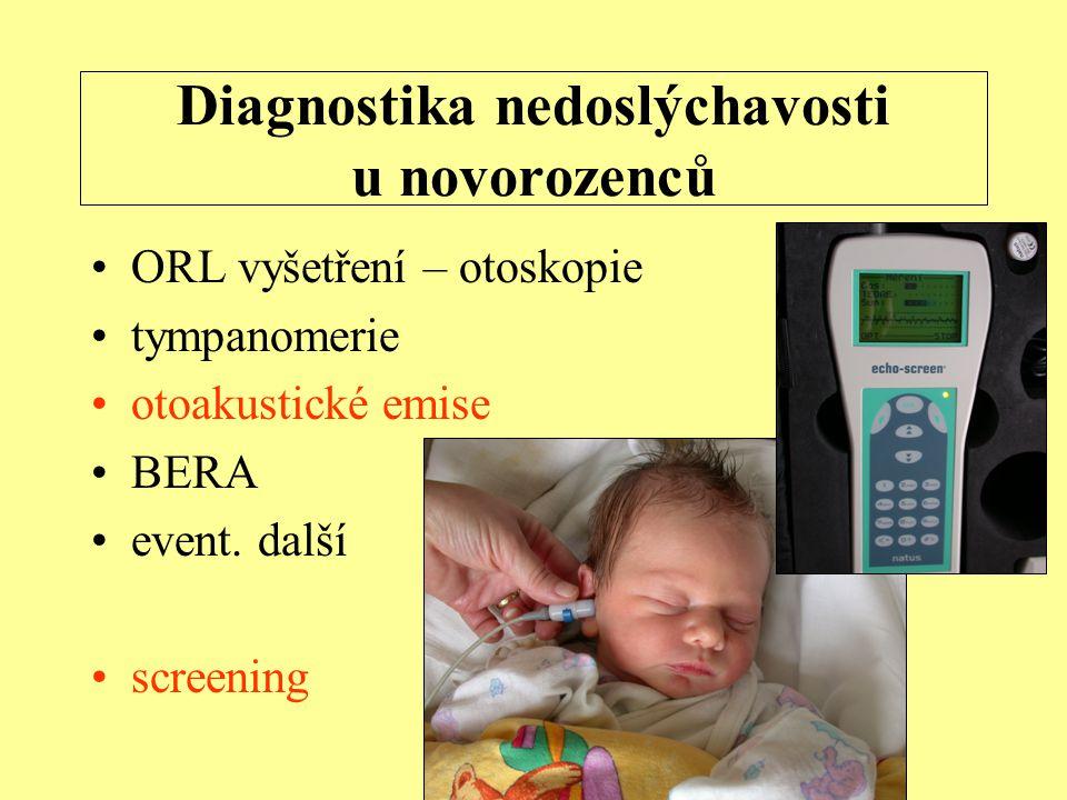 Diagnostika nedoslýchavosti u novorozenců ORL vyšetření – otoskopie tympanomerie otoakustické emise BERA event.