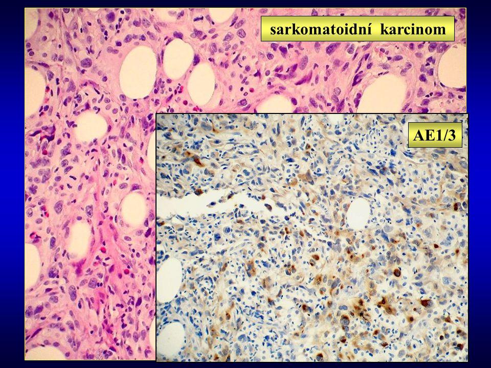 AE1/3 sarkomatoidní karcinom