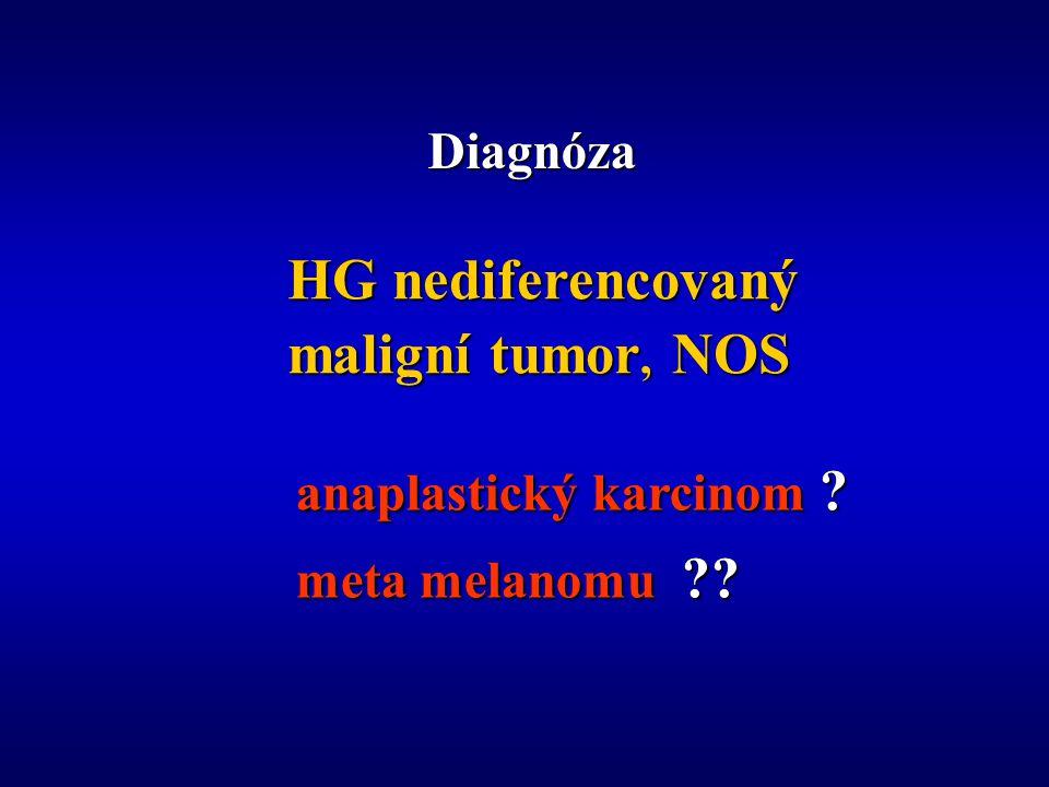 Diagnóza HG nediferencovaný maligní tumor, NOS anaplastický karcinom ? meta melanomu ??