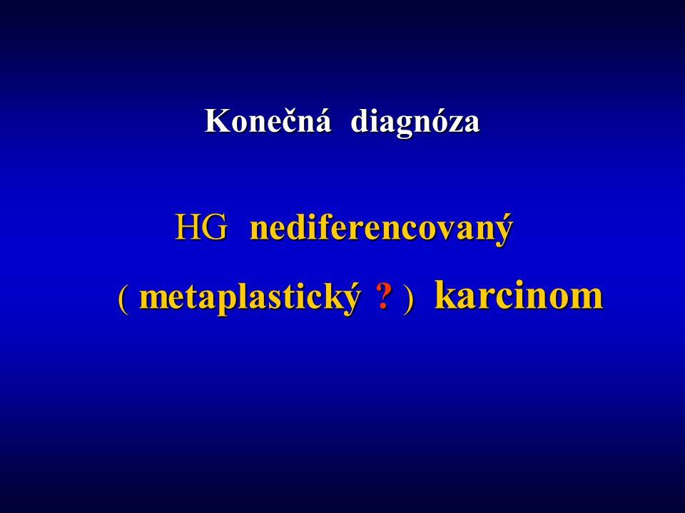 Konečná diagnóza HG nediferencovaný HG nediferencovaný ( metaplastický ) karcinom