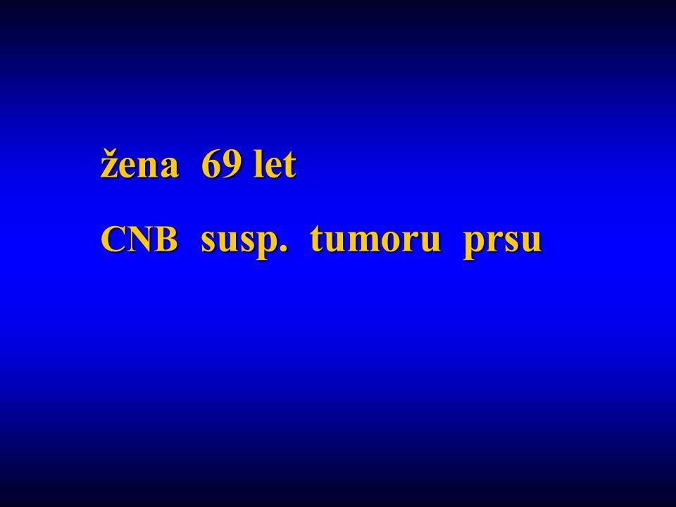 žena 69 let CNB susp. tumoru prsu