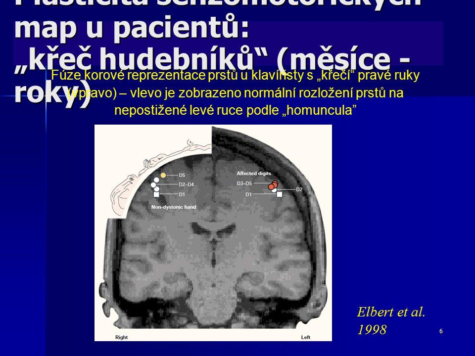 """6 Plasticita senzomotorických map u pacientů: """"křeč hudebníků"""" (měsíce - roky) Fúze korové reprezentace prstů u klavíristy s """"křečí"""" pravé ruky (vprav"""