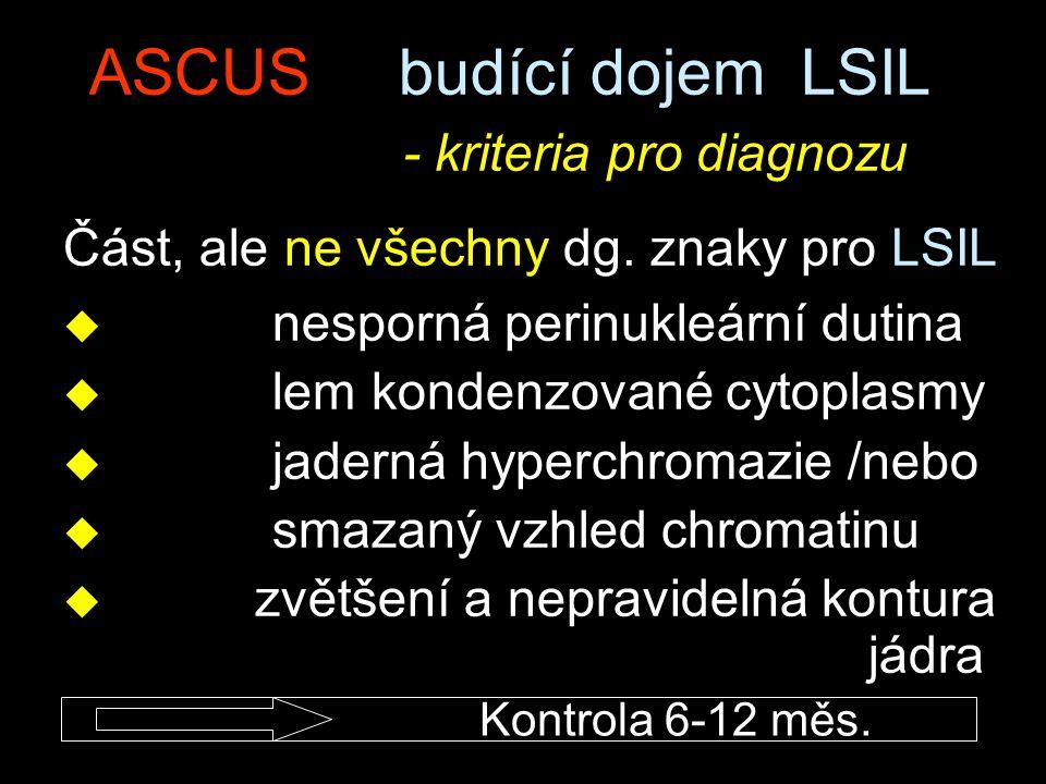 ASCUS budící dojem LSIL - kriteria pro diagnozu Část, ale ne všechny dg. znaky pro LSIL u nesporná perinukleární dutina u lem kondenzované cytoplasmy