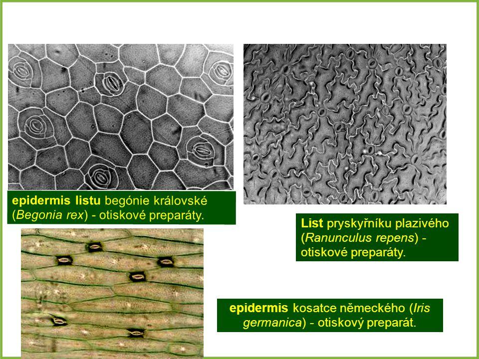epidermis listu begónie královské (Begonia rex) - otiskové preparáty. List pryskyřníku plazivého (Ranunculus repens) - otiskové preparáty. epidermis k