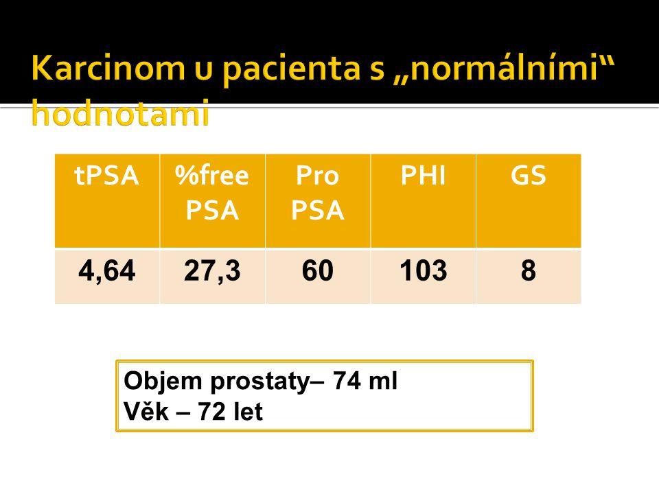 Objem prostaty– 74 ml Věk – 72 let tPSA%free PSA Pro PSA PHIGS 4,6427,3601038
