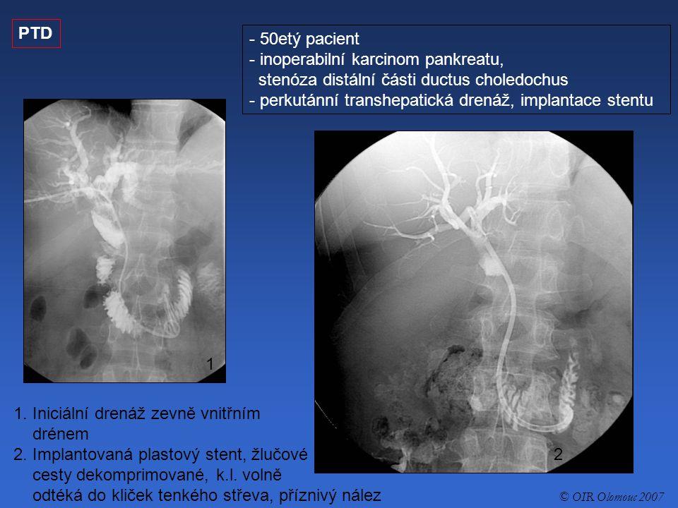 PTD - 50etý pacient - inoperabilní karcinom pankreatu, stenóza distální části ductus choledochus - perkutánní transhepatická drenáž, implantace stentu 1.