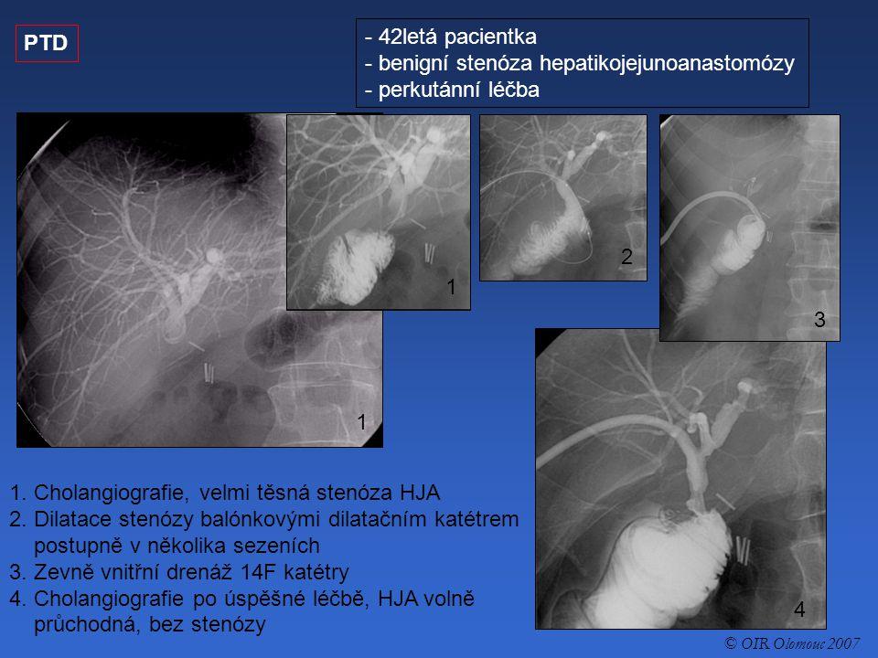 PTD - 42letá pacientka - benigní stenóza hepatikojejunoanastomózy - perkutánní léčba 1.