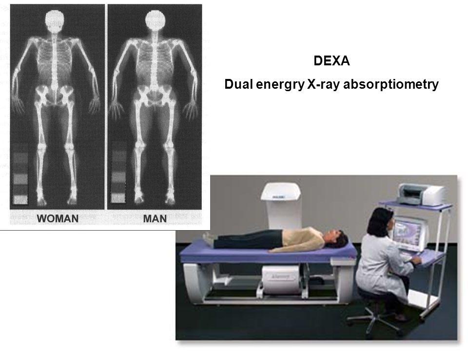 DEXA Dual energry X-ray absorptiometry