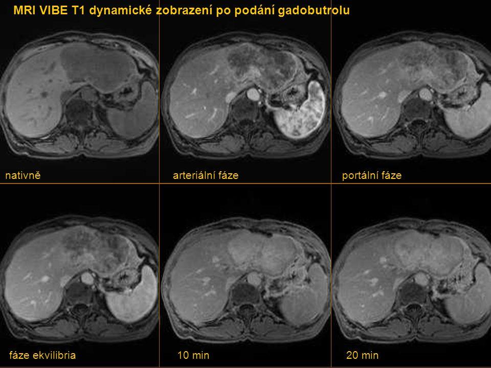 KASUISTIKA 5  Žena staršího věku přichází na MRI vyšetření z důvodu útvaru v játrech nejasné povahy. Vyšetření provedeno po podání gadobutrolu.