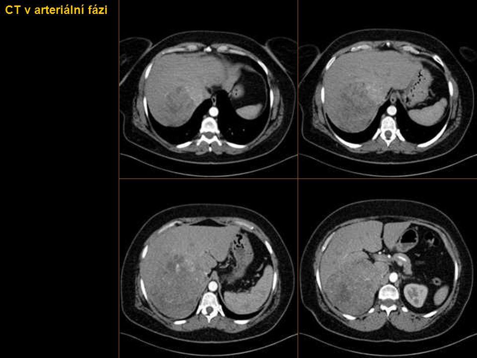 KASUISTIKA 1  Obézní žena středního věku trpící hirsutismem přichází na CT vyšetření z důvodu podezření na expanzivní proces v játrech.