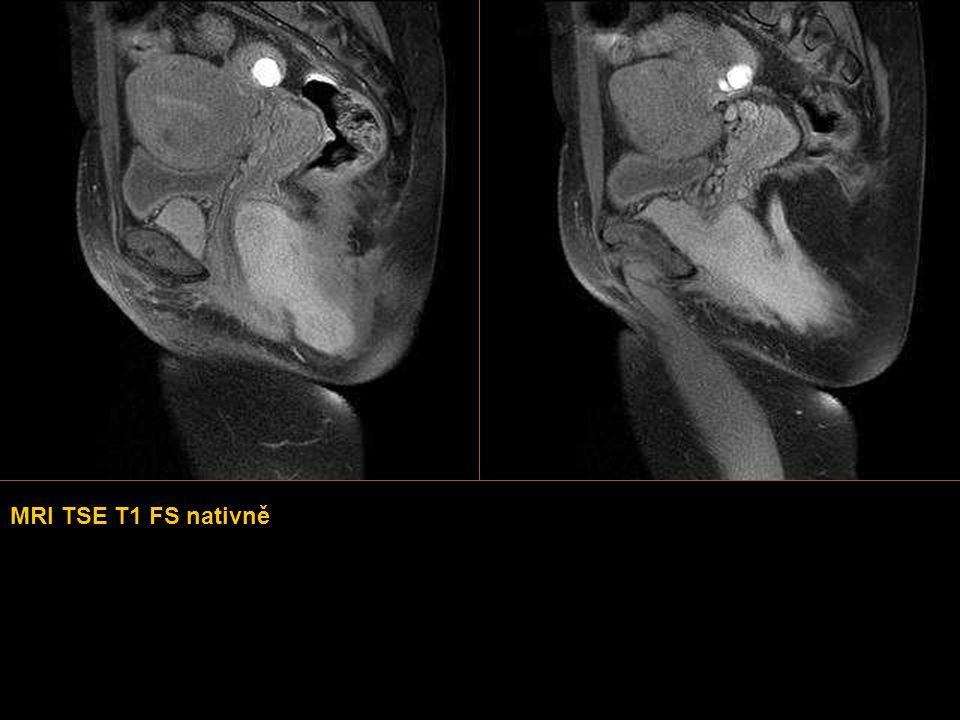 KASUISTIKA 6  Žena mladšího středního věku přichází na vyšetření MRI z důvodu hmatného útvaru na perineu.