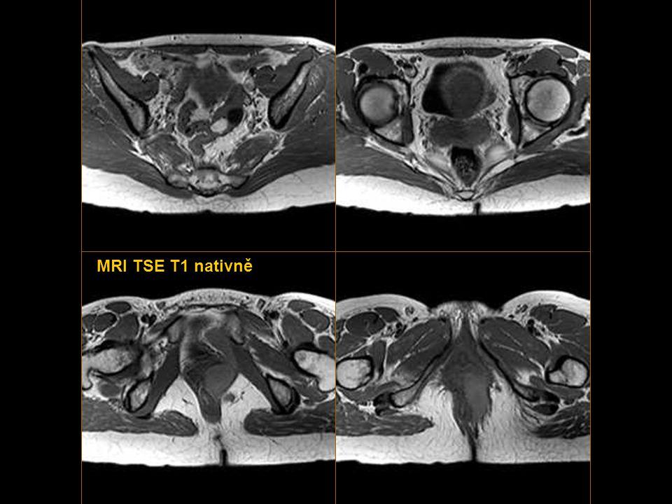 MRI TSE T1 FS nativně