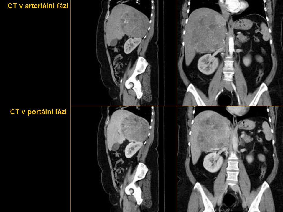 KASUISTIKA 5  Žena staršího věku přichází na MRI vyšetření z důvodu útvaru v játrech nejasné povahy.