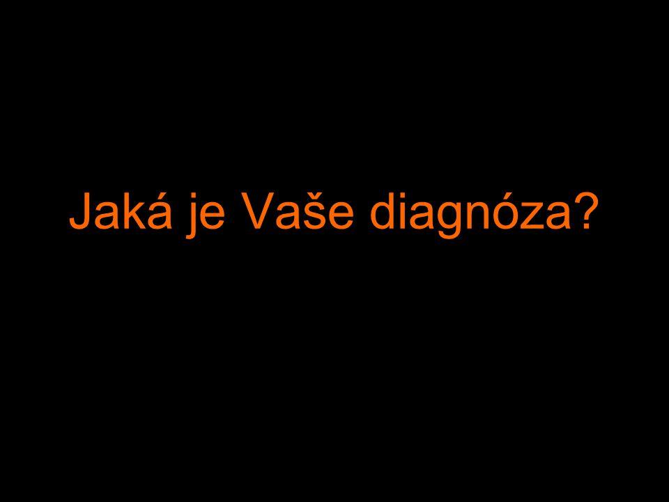 Jaká je Vaše diagnóza?