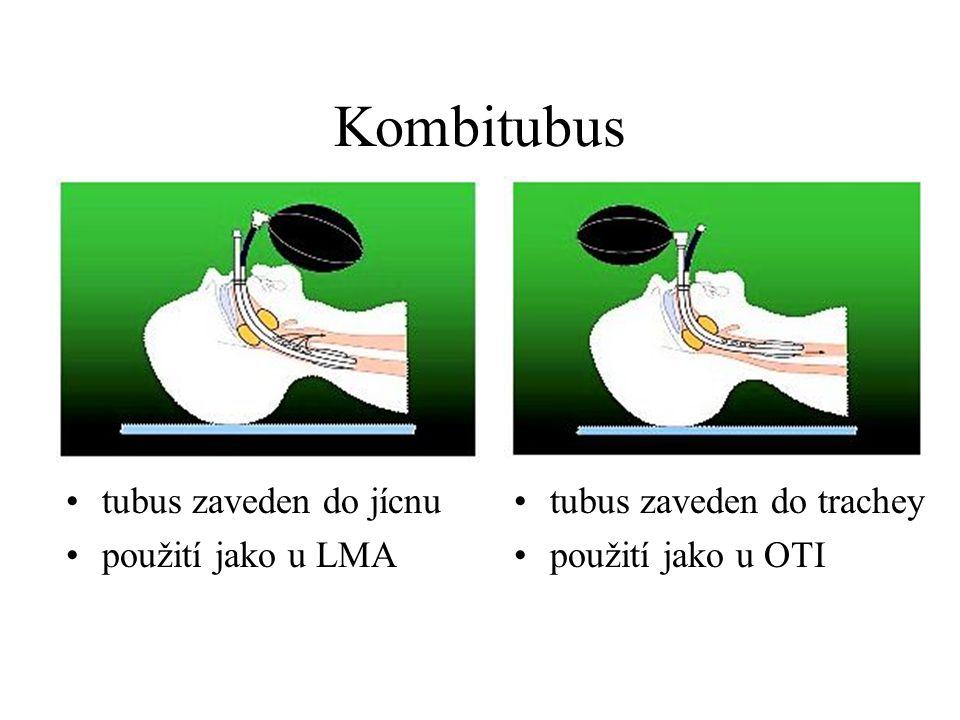 Kombitubus tubus zaveden do jícnu použití jako u LMA tubus zaveden do trachey použití jako u OTI