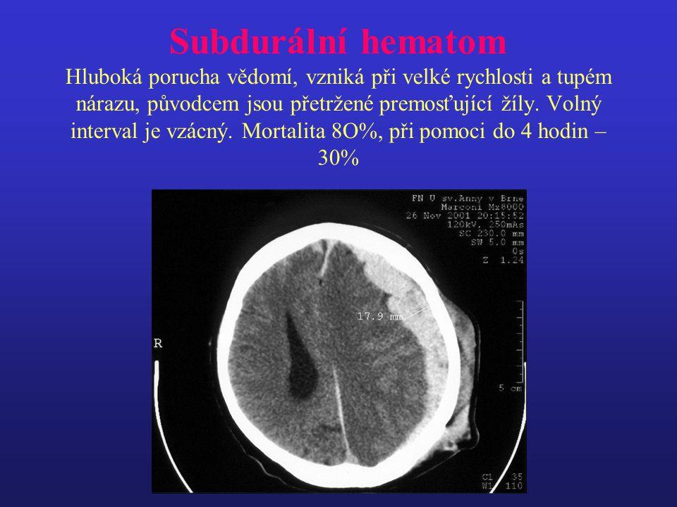 Subdurální hematom Hluboká porucha vědomí, vzniká při velké rychlosti a tupém nárazu, původcem jsou přetržené premosťující žíly. Volný interval je vzá