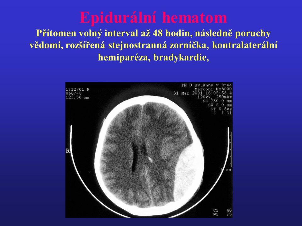 Epidurální hematom Přítomen volný interval až 48 hodin, následně poruchy vědomi, rozšířená stejnostranná zornička, kontralaterální hemiparéza, bradyka